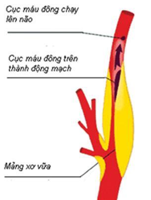 Nguyên nhân gây hẹp động mạch cảnh