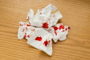 Bệnh trĩ đi ngoài ra máu tươi có nguy hiểm không?