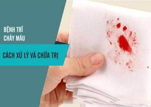 Bệnh trĩ chảy máu phải làm sao?