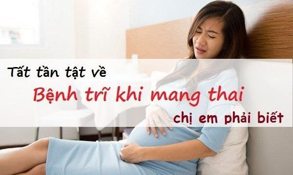 Tất tần tật về bệnh trĩ khi mang thai