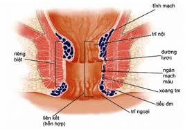 trĩ nội trĩ ngoại, trĩ nội và trĩ ngoại