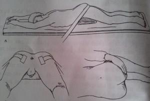 Phẫu thuật trĩ | các tư thế nằm của bệnh nhân mổ trĩ