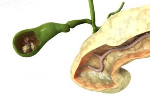 Kết tủa cholesterol và sỏi mật