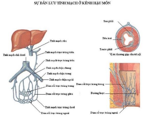 trĩ nội trĩ ngoại | su dan luu tinh mach o hau mon