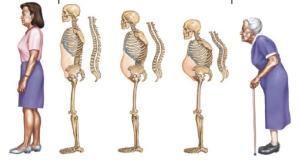 Bệnh loãng xương thường gặp ở người cao tuổi