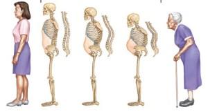 Quá trình phát triển của bện loãng xương ở người già