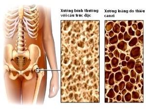 Cần điều trị bệnh loãng xương càng sớm càng tốt