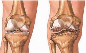 Một số nguyên tắc khi dùng thuốc điều trị loãng xương