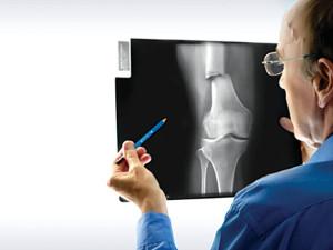 Điều trị bệnh loãng xương