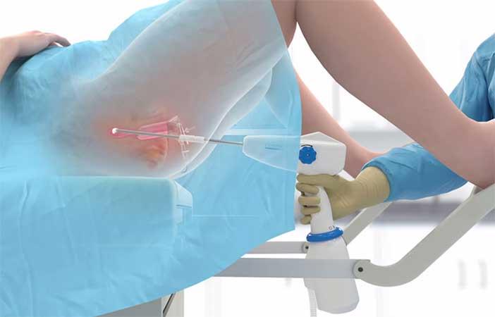 Tìm hiểu về phương pháp áp lạnh viêm lộ tuyến