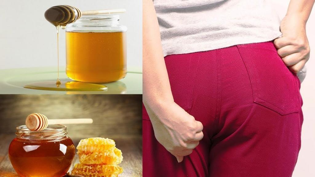 Mật ong và tác dụng to lớn trong điều trị trĩ tại nhà