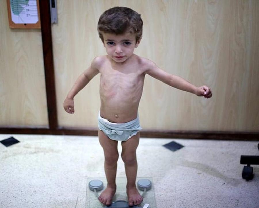 Trẻ biếng ăn suy dinh dưỡng