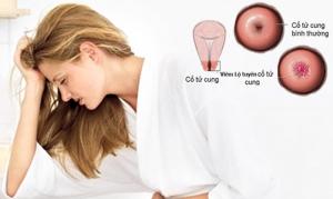 Bệnh viêm lộ tuyến có chữa khỏi được không?