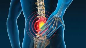 Nguyên nhân gây đau lưng cấp tính là gì?