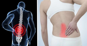 Đứng lâu bị đau lưng là bệnh gì? Có nguy hiểm không?