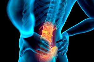 Danh sách những việc cần tránh sau cơn đau lưng cấp tính