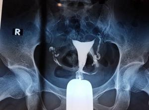 Chụp tử cung vòi trứng có làm rối loạn kinh nguyệt không?
