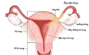 Làm gì khi bị rối loạn kinh nguyệt sau chụp tử cung vòi trứng