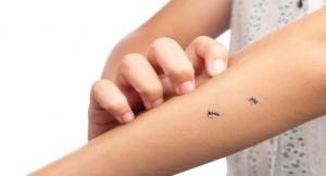 Muỗi đốt bao lâu thì bị sốt xuất huyết