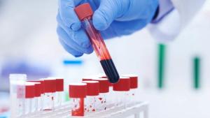 Xét nghiệm máu sốt xuất huyết